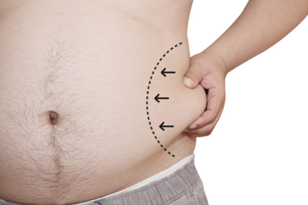 man grabbing fat on waist with liposuction lines