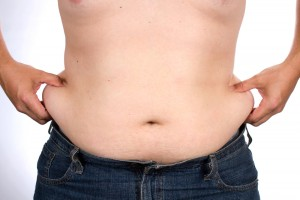 man stomach holding love handles before liposuction