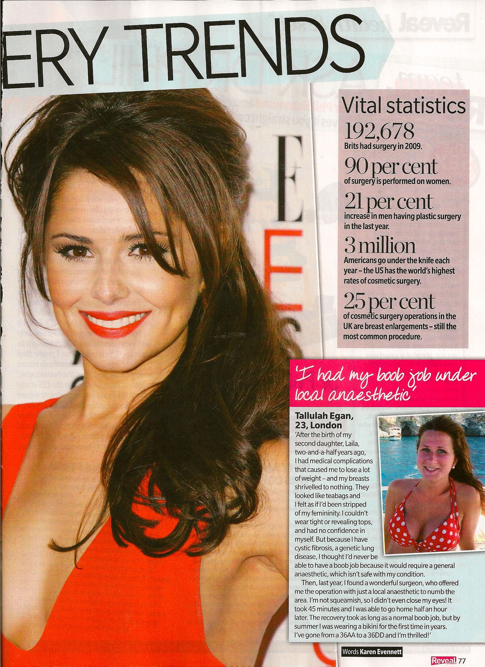 I had a boob job under local anaesthetic! Reveal Magazine
