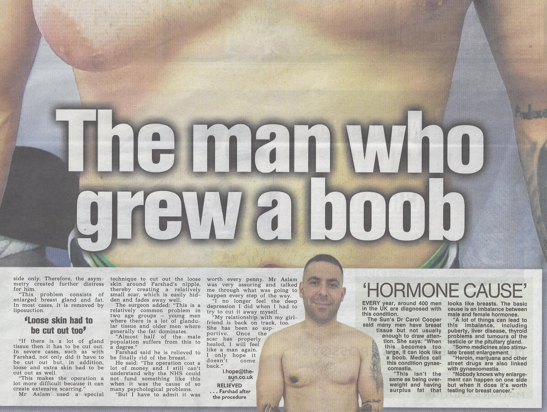 The man who grew a boob. Sun coverage for LINIA
