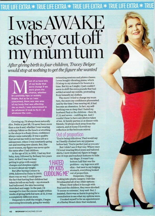 Tummy Tuck under local anaesthetic for Woman magazine