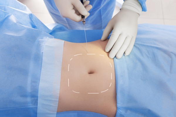 vaser liposuction procedure