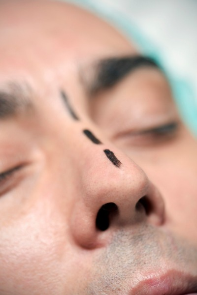 man prepares for rhinoplasty
