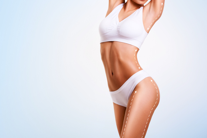 Female body cosmetic surgery lines for body lift