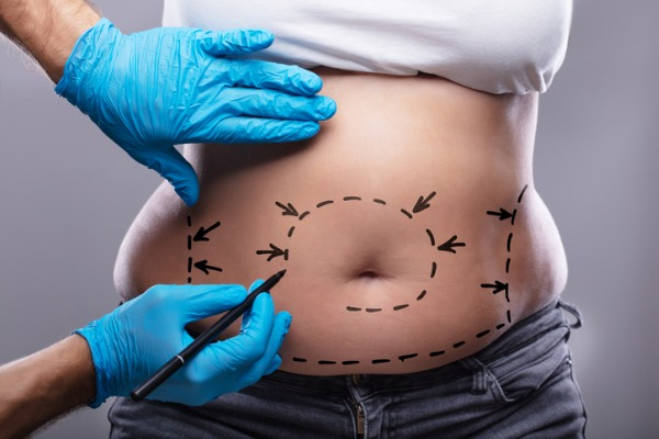 woman liposuction for weight loss on stomach