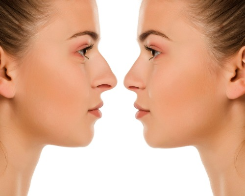 before and after rhinoplasty comparison