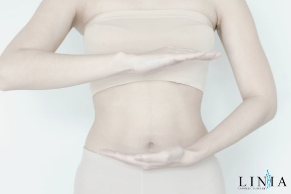woman after having tummy tuck at good price